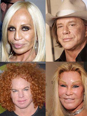 bad plastic surgery.jpg