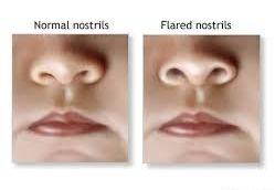 Flared nostrils